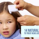 Vinegar For Head Lice