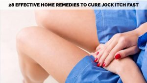 Jock Itch Remedies