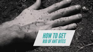 Home Remedy for Ant Bites