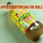Apple Cider Vinegar For Boils