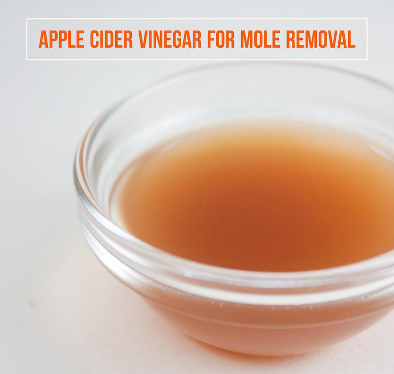 How To Remove Moles With Apple Cider Vinegar
