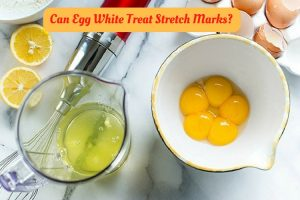 Egg White For Stretch Marks