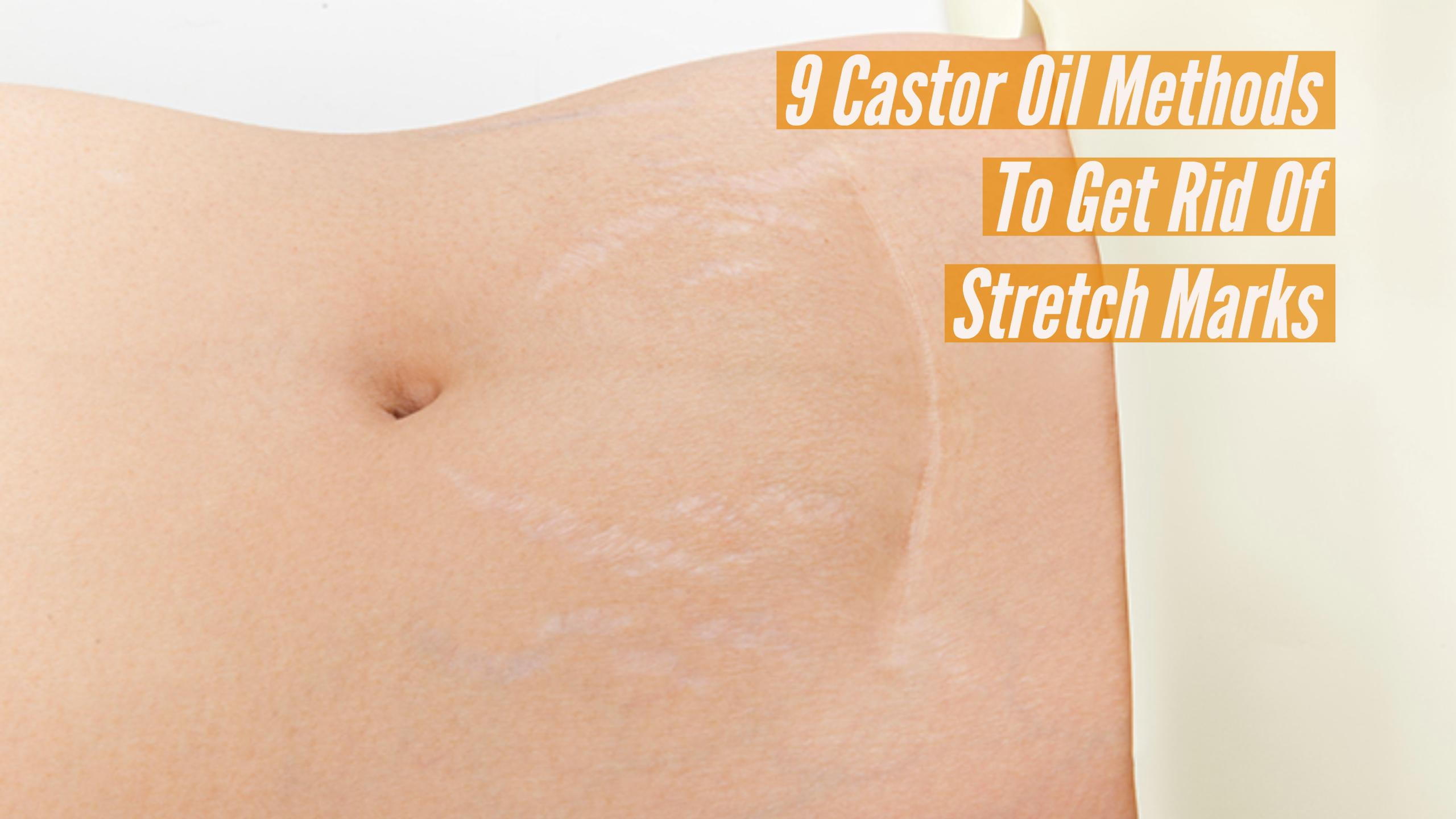 Castor Oil For Stretch Marks
