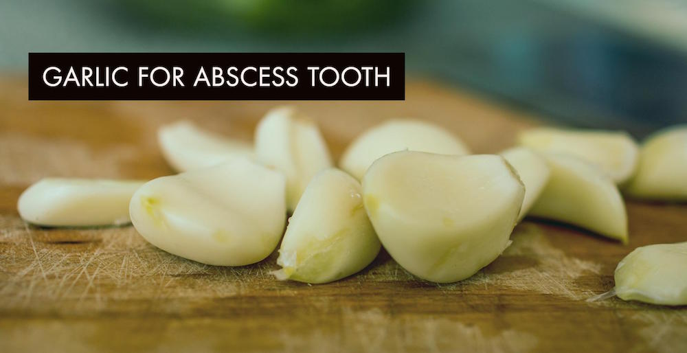 Garlic For Abscess Tooth