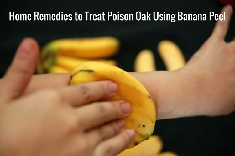 How to Use Banana Peel for Poison Oak