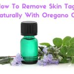 How to Use Oregano Oil for Skin Tags