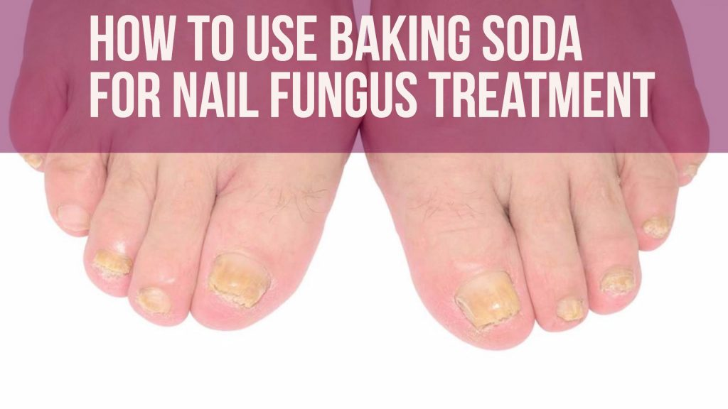 Baking Soda for Toenail Fungus | 8 DIY Treatments for Toes (& Feet)