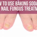 How To Use Baking Soda For Nail Fungus Treatment?