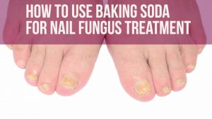 Baking Soda For Nail Fungus