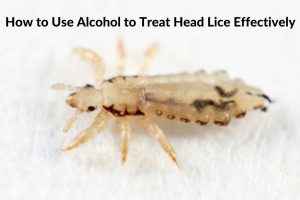 How to Use Alcohol for Head Lice