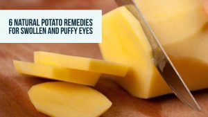 Potato For Puffy Eyes