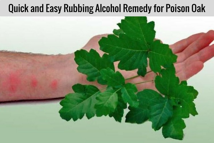 How to Use Rubbing Alcohol to Treat Poison Oak