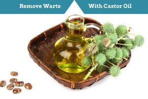 Castor Oil For Warts