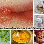 20 Home Remedies To Get Rid Of Fordyce Spots