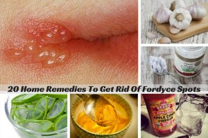 Home Remedies For Fordyce Spots