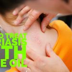 How To Treat Psoriasis With Olive Oil