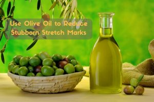 Olive Marks Oil For Stretch marks