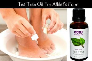 How To Cure A Foot Fungus Naturally