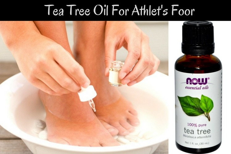 Tea Tree Oil For Athlets Foot