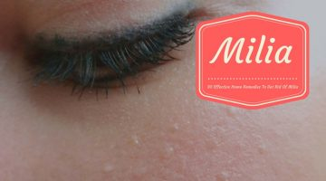 30 Effective Home Remedies To Get Rid Of Milia