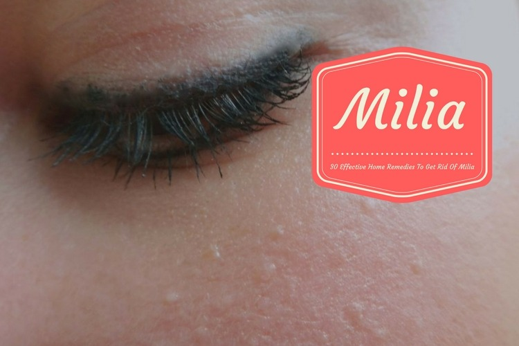 How to Get Rid of Milia Using Home Remedies