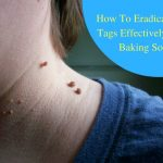 How To Eradicate Skin Tags Effectively Using Baking Soda