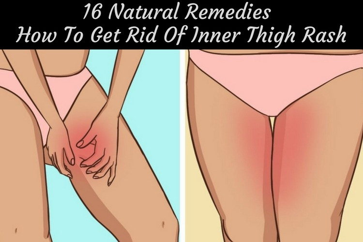 how to get rid of inner thigh rash 16 natural remedies