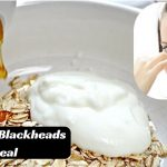 How To Get Rid Of Blackheads Quickly With Oatmeal