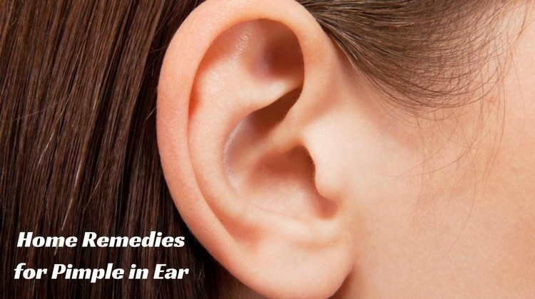 How To Get Rid Of A Pimple In The Ear 15 Natural Remedies