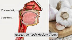 Garlic for Sore Throat