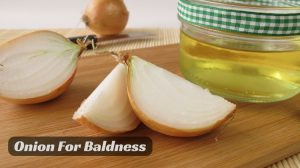 How to Use Onion to Get Rid of Baldness