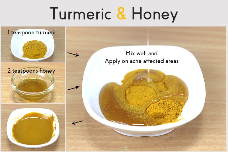 How to Treat Acne Effectively with Turmeric