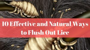 10 Effective and Natural Ways to Flush Out Lice Title