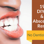 19 Easy DIY Tooth & Gum Abscess Home Remedies
