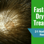 Fast-Acting Dry Scalp Treatments
