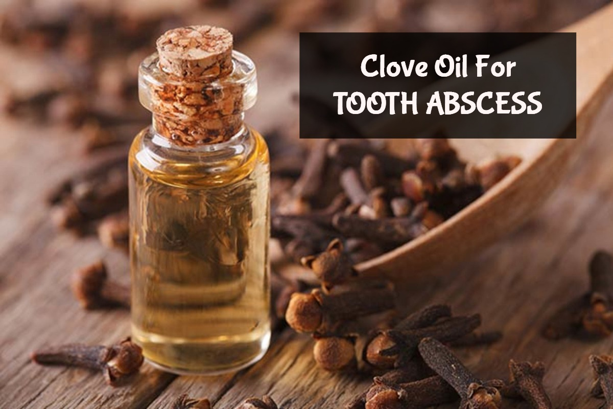 clove oil for tooth abscess