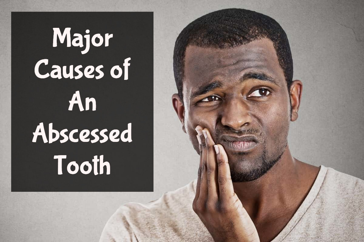 major causes of an abscessed tooth