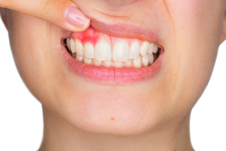tooth abscess symptoms