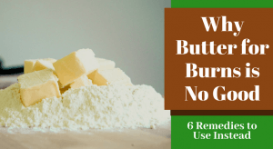Why Butter for Burns is No Good